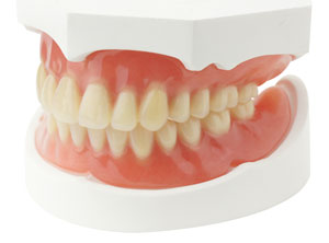 top and bottom complete dentures in a molding tray